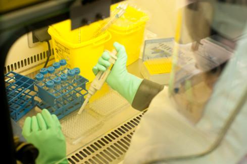 Virus Zika : Les chercheurs français se mobilisent